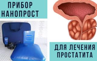 Прибор Нанопрост для лечения простатита